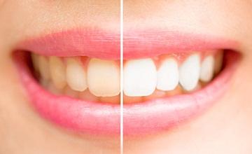 Astuces pour avoir des dents blanches
